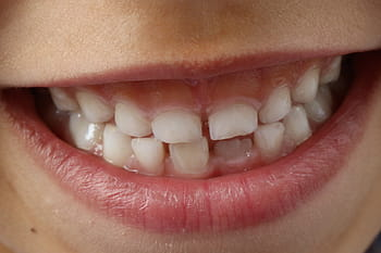 Mouth and Throat health and the benefits of Probiotics